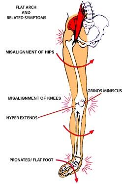 knee-pain-orthotics