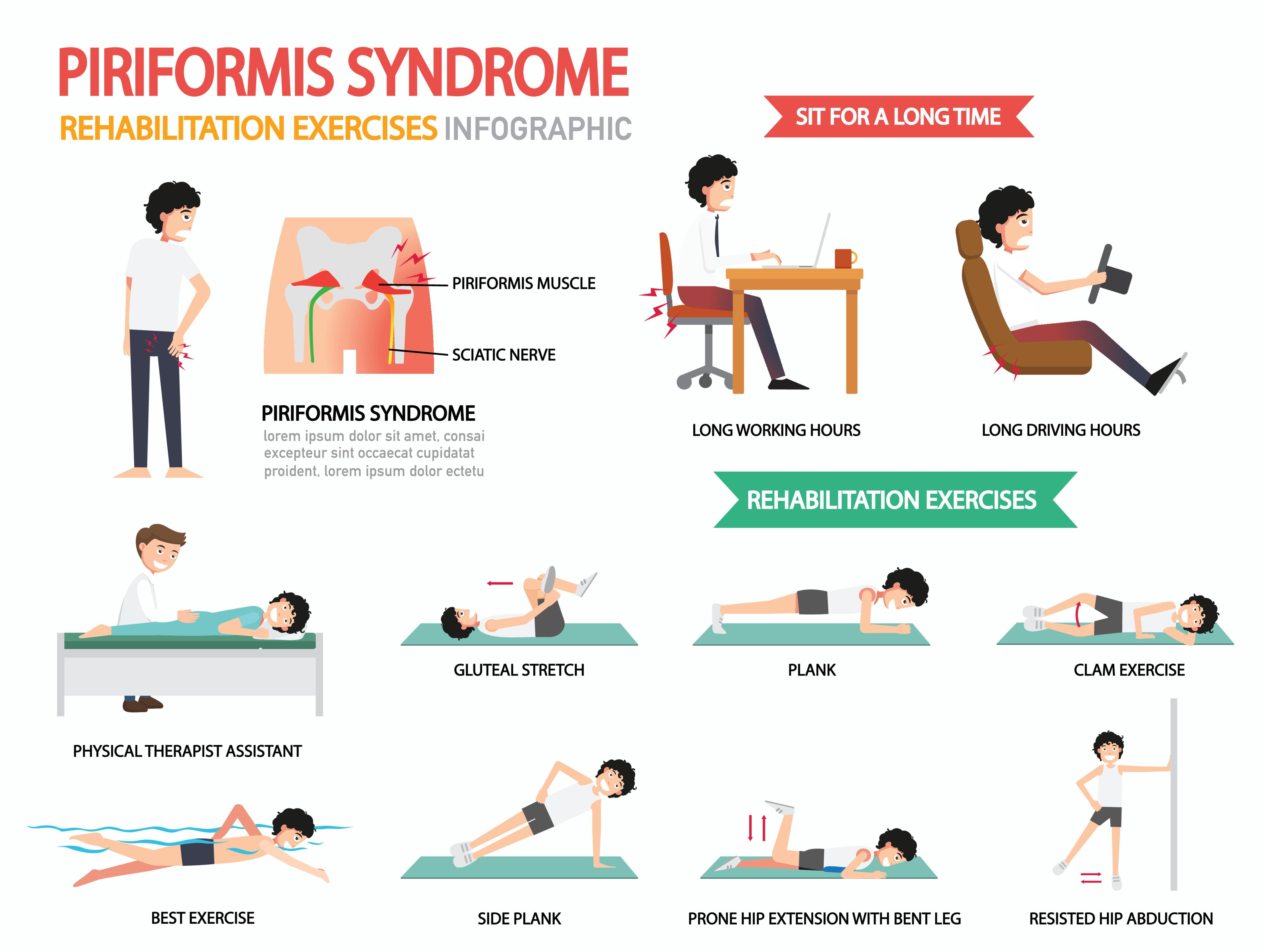 piriformis syndrome rehabilitation exercises infographic